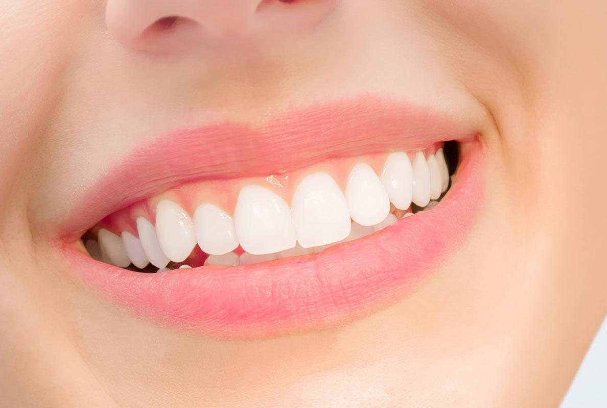 Foto von einem Mund mit strahlend weißen Zähnen - Ästhetischer- Thema: Ästhetischer- Zahnersatz- Dr. med. dent. Michael Löw